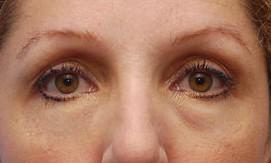 wallen-onder-de-ogen-behandelen-nafoto (1)