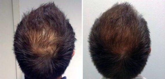 xl-hair-resultaten-voor-na