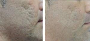 acne-littekens-verwijderen-300x138
