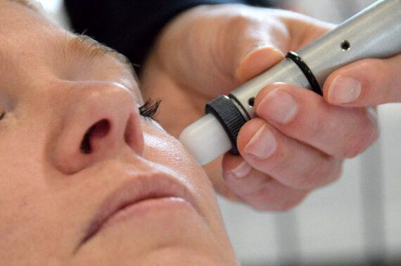 Microdermabrasie behandeling SkinJet